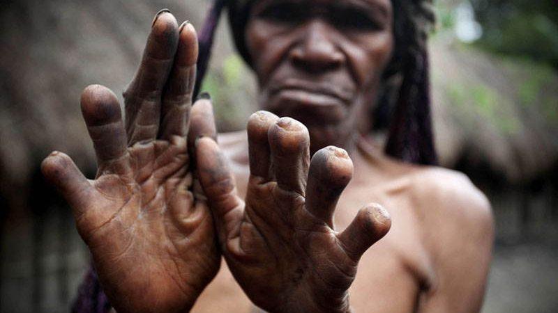 قطع کردن انگشتان