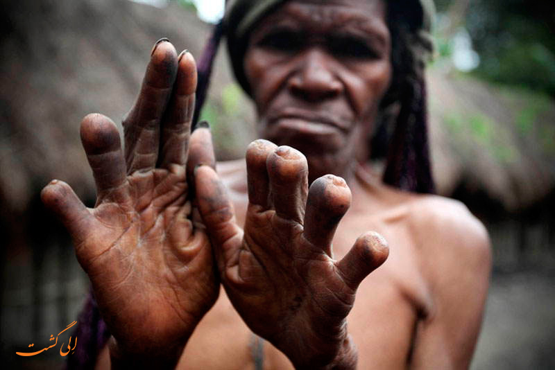 رسم بریدن انگشت ها