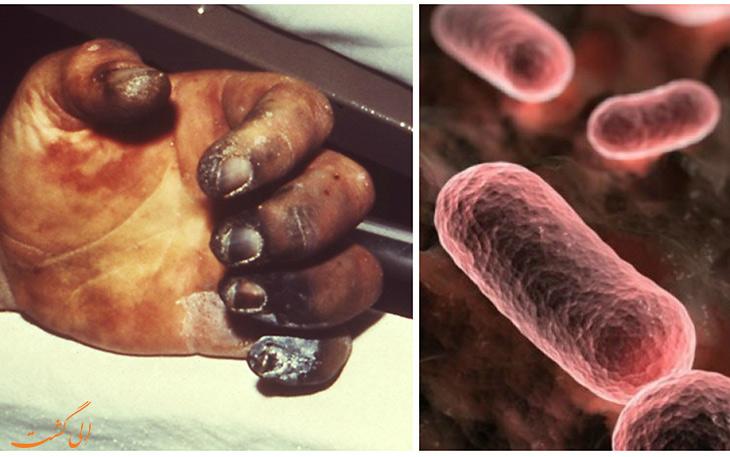 عامل بیماری و نحوه انتقال طاعون